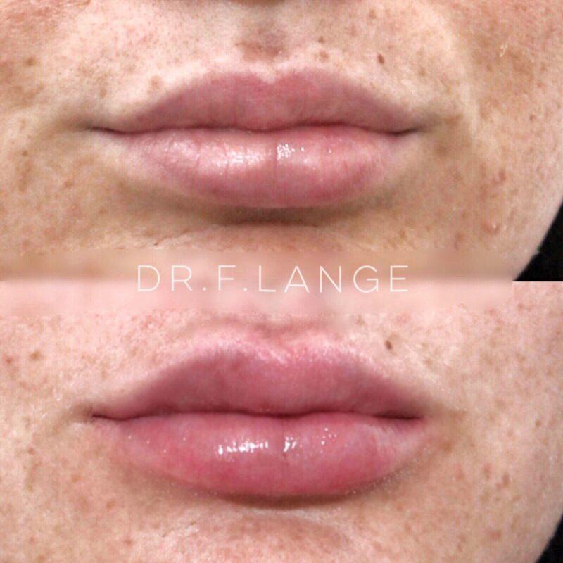 IMG 1731 e1532275934211 Augmentation des lèvres