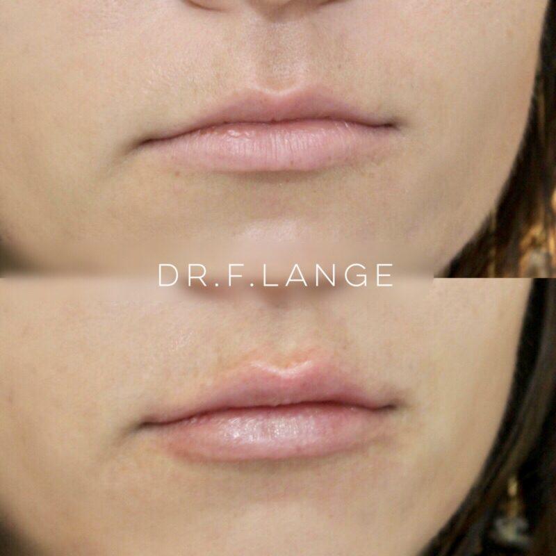 IMG 2938 e1532275721237 Augmentation des lèvres