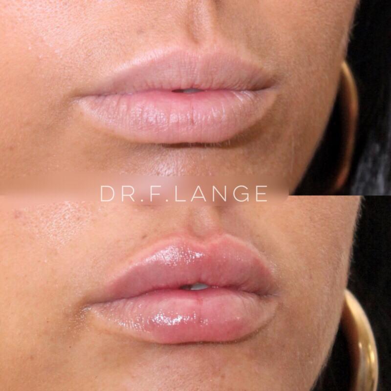 IMG 3356 e1532275912173 Augmentation des lèvres