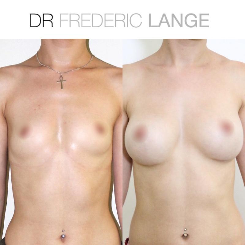 IMG 3950 Augmentation mammaire