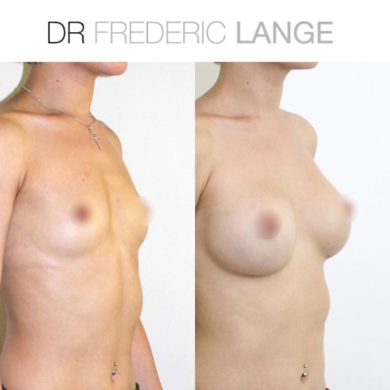 IMG 3953 Augmentation mammaire