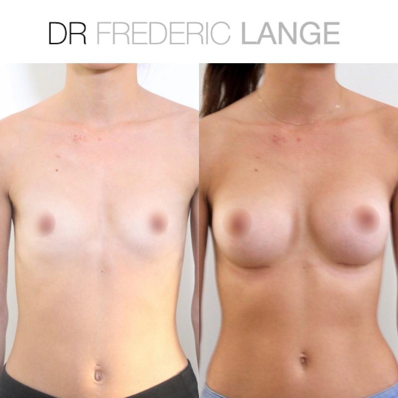 IMG 3958 Augmentation mammaire
