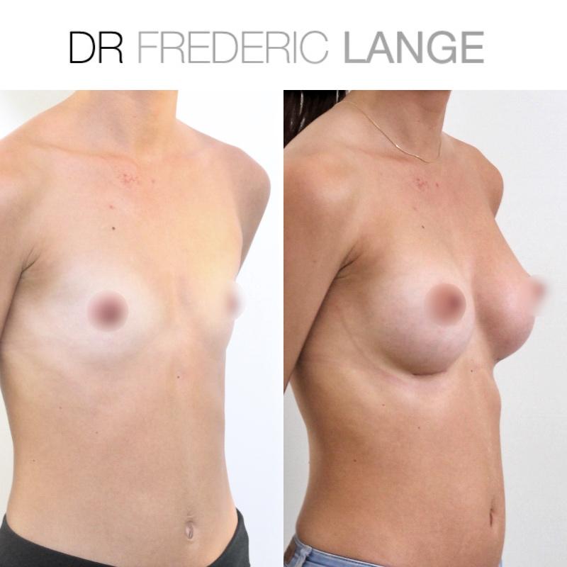 IMG 3959 Augmentation mammaire