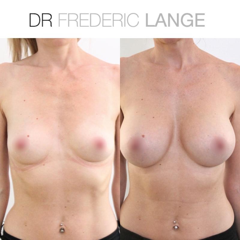 IMG 3969 Augmentation mammaire