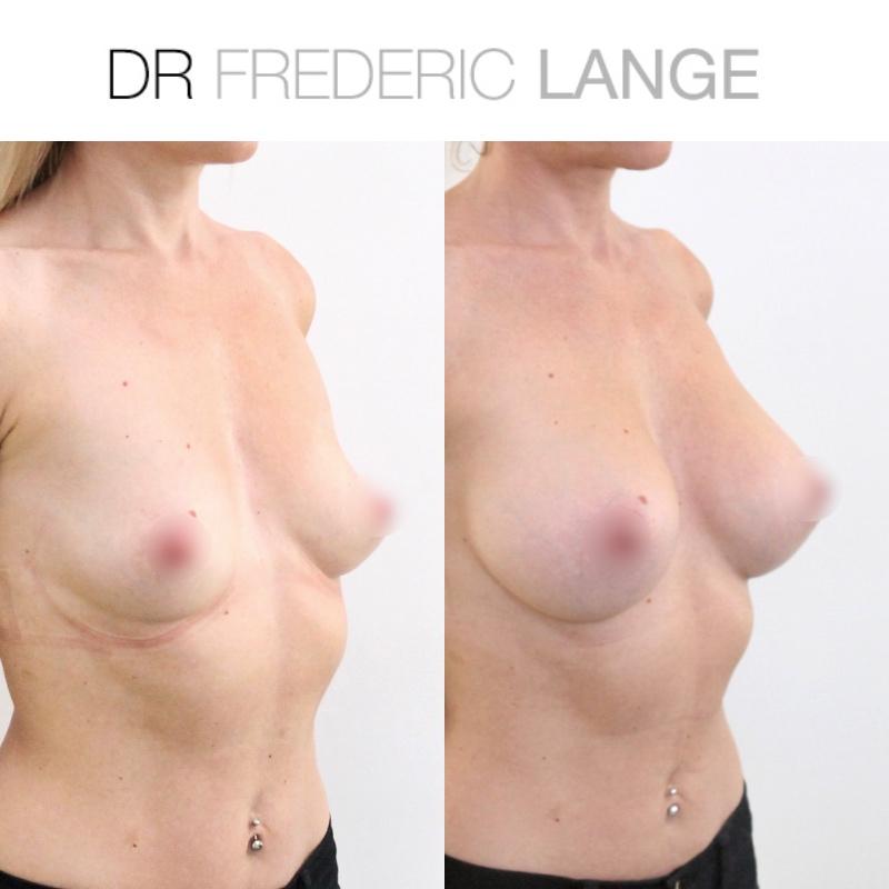 IMG 3970 Augmentation mammaire