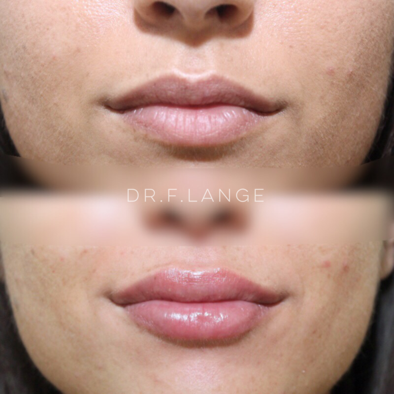 IMG 4235 e1532275734434 Augmentation des lèvres