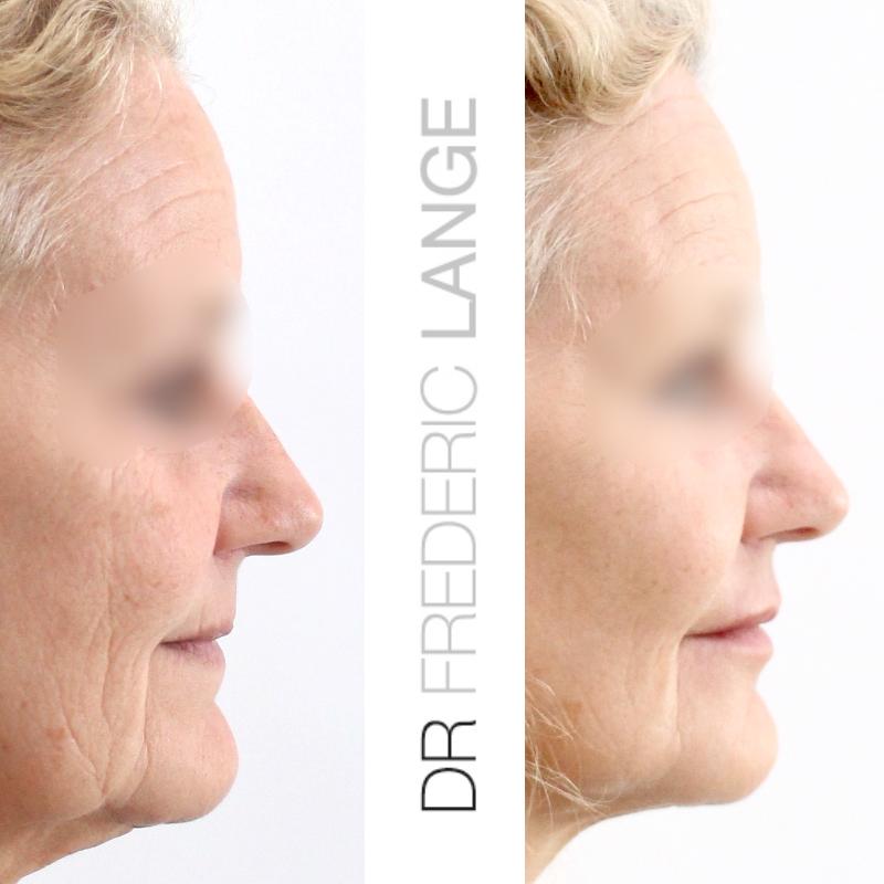 IMG 4691 Lifting cervico facial